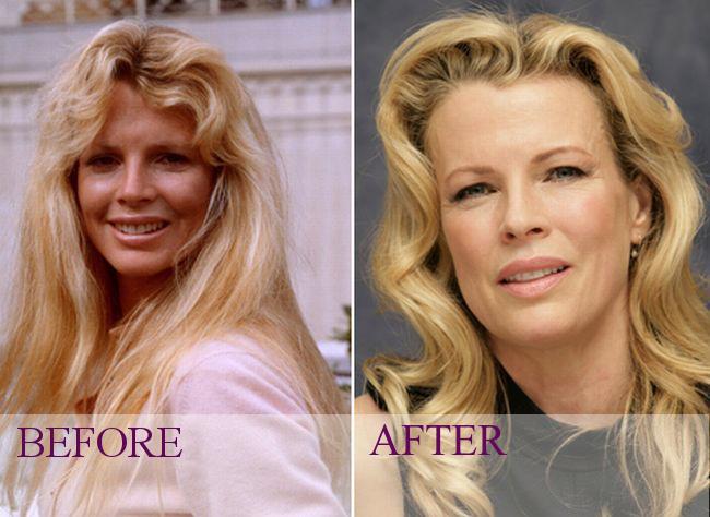 Celebrity - Kim Basing... Pamela Anderson Facelift