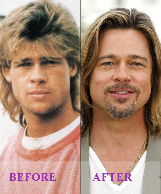 Celebrity Brad Pitt Plastic Surgery Photos Video