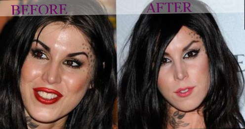 best lip injections to get