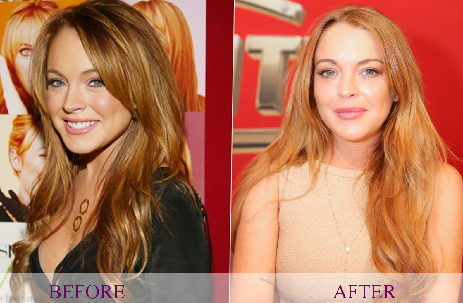 Celebrity Lindsay Lohan Plastic Surgery Photos Video