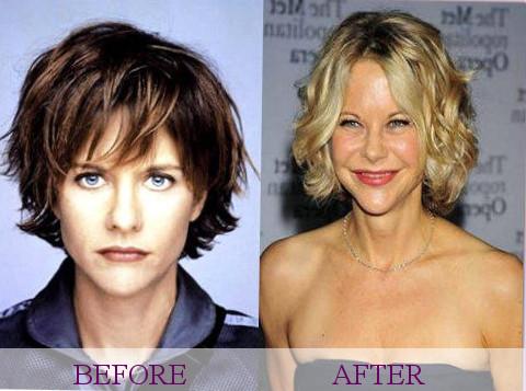 Celebrity Meg Ryan Plastic Surgery Photos Video