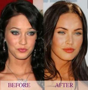Megan Fox plastic changes