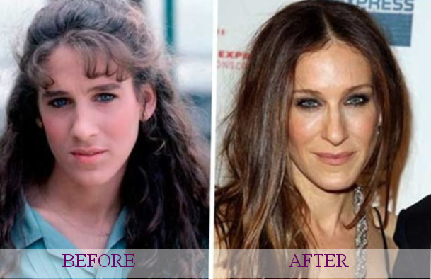 Celebrity Sarah Jessica Parker Plastic Surgery Photos
