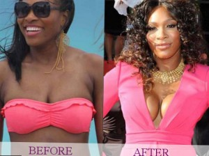 http://starschanges.com/category/%D1%81elebrity-surgeries/breast-implants/
