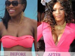 https://starschanges.com/category/%D1%81elebrity-surgeries/breast-implants/