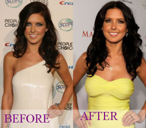 audrina-patridge-breast-implants