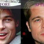 Brad Pitt – Plastic Surgery