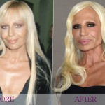Top Celebrity Bad Surgery