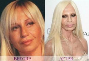 Celecrities bad surgery