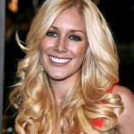 Heidi Montag  – Celebrity Plastic Surgery
