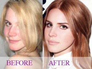 Celebrity Lana Del Rey Plastic Surgery Photos Video