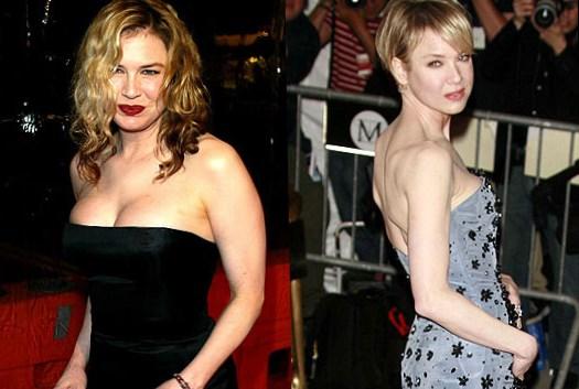 Renee Zellwegers Stunning Body Transformation - PK