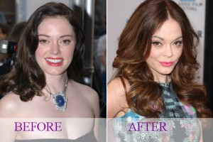 rose_mcgowan_surgery2