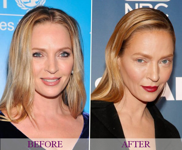 Brow Lift Plastic Surgery Before And After - celebrity ...