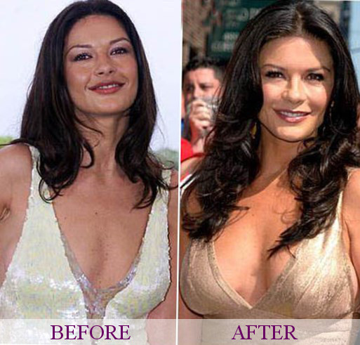 Catherine zeta-jones new boobs