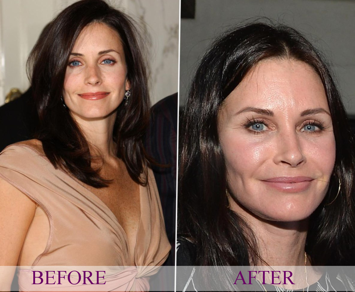 Celebrity Courteney Cox Plastic Surgery Photos Video