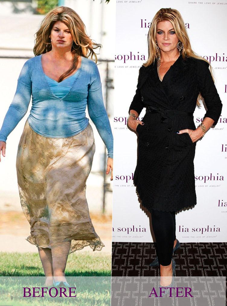 Kirstie Alley weight changes