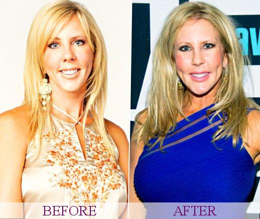 Vicki Gunvalson - Plastic Surgery
