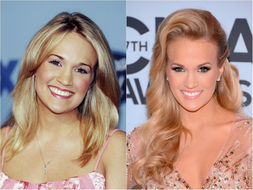 Celebrity Carrie Underwood Plastic Surgery Photos Video