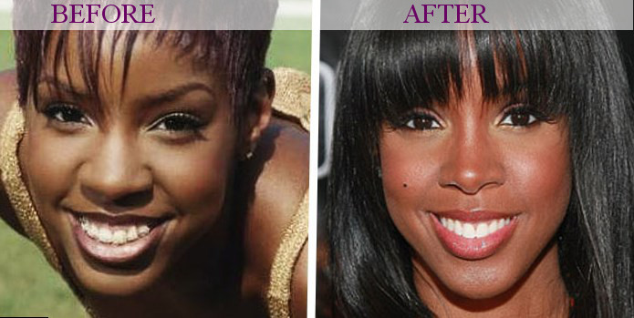 Jada Pinkett Smith Plastic Surgery – Yes or No recommendations
