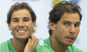 Rafael Nadal`s eyes and hair color