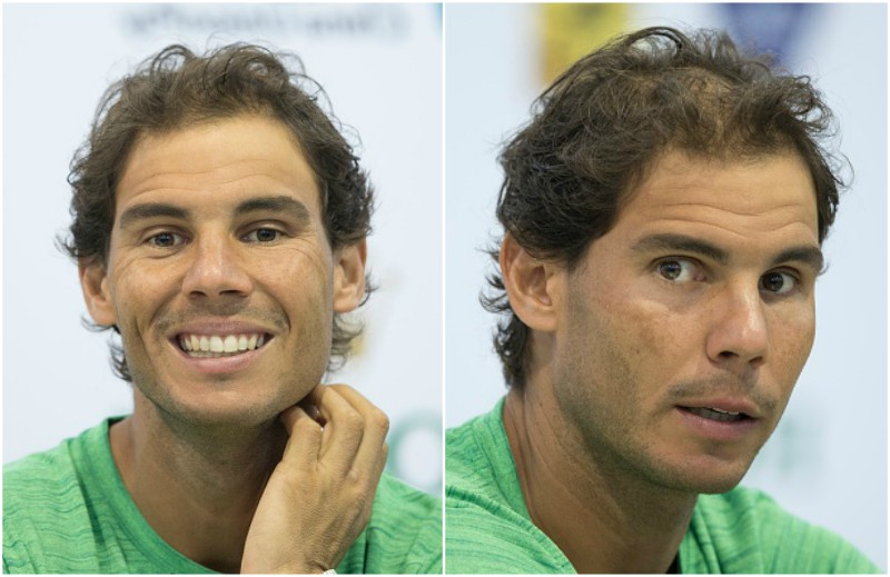 Rafael Nadal`s eyes and hair color