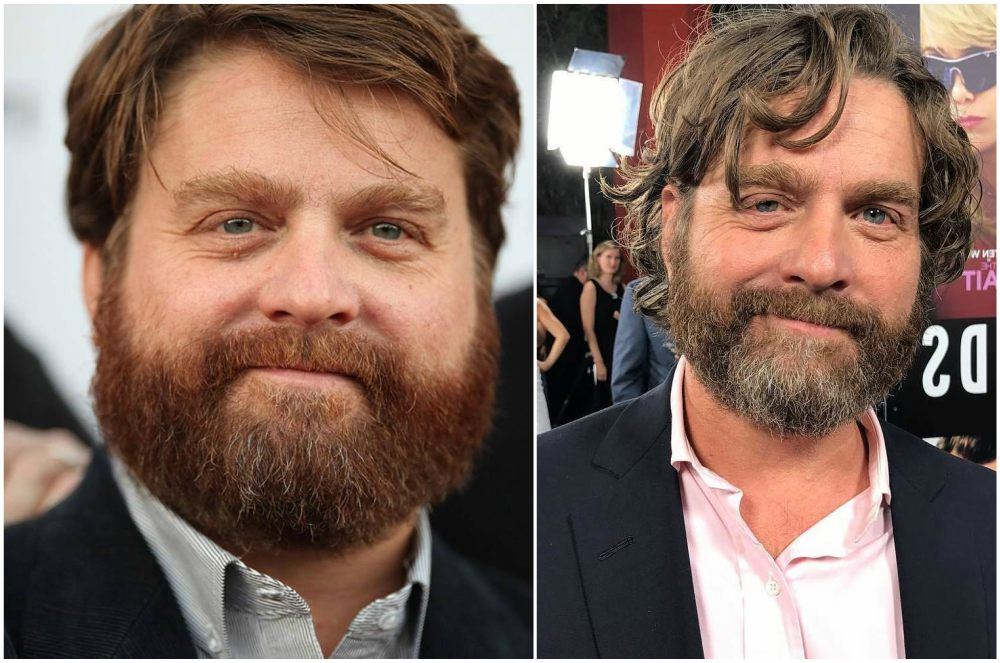 Zach Galifianakis` eyes and hair color