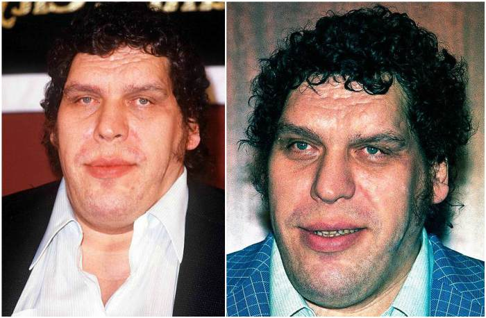 Andre The Giant S Height Weight He Was Since The Very