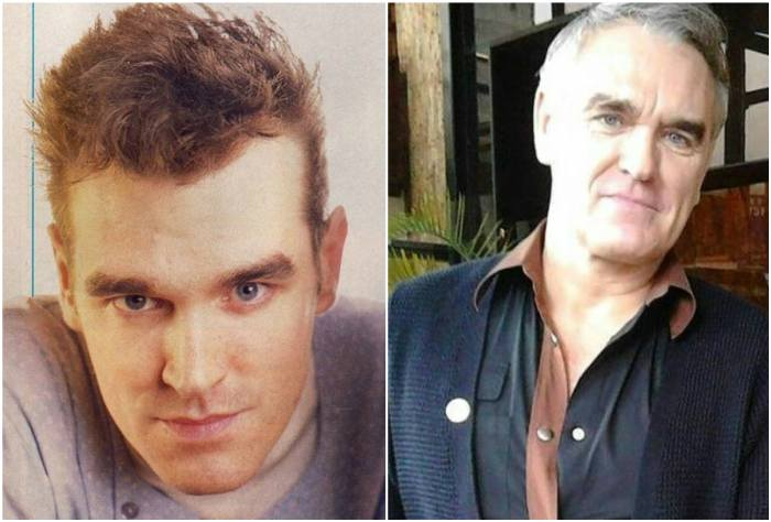 Singer Morrissey's eyes and hair color