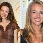 Amy Acker's knee surgery stopped her career