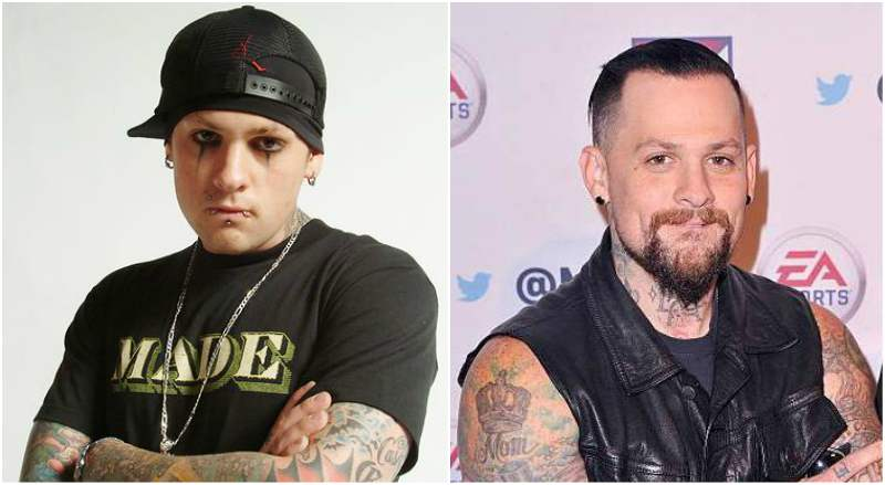 Benji Madden's eyes and hair color