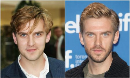 Dan Stevens' eyes and hair color